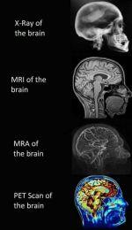 Imagem Cérebro